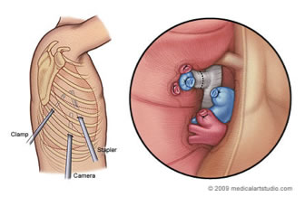 Twin Cities Heart and Lung - Video Assisted Thoracostomy